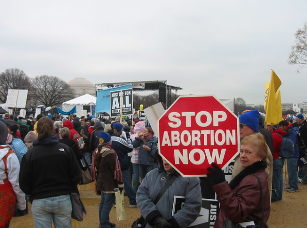 Abortion, should it be legal?